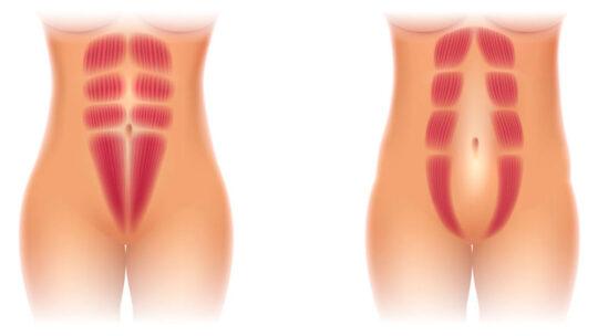 Delte mavemuskler skal løses effektivt